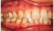 gum-disease-treatment