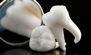 Wisdom teeth removal and Oral Surgery
