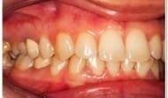 gum-disease-treatment